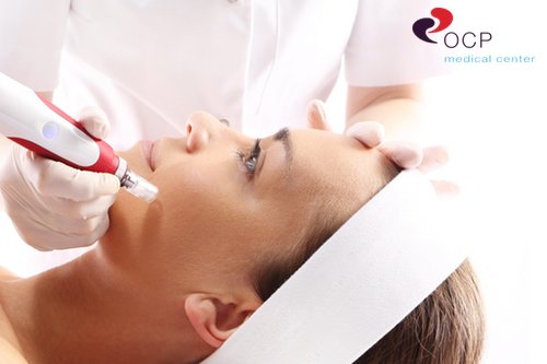 latest laser treatment for acne scars